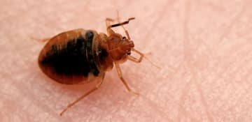 Bed Bug Treatment Albany NY